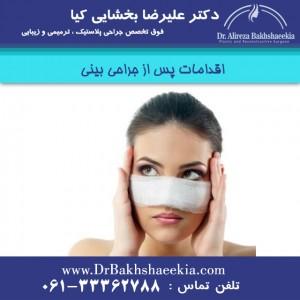 اقدامات پس از جراحی بینی