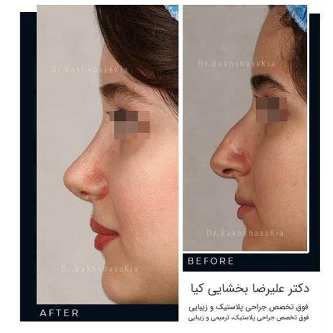 جراحی بینی زنانه فانتزی