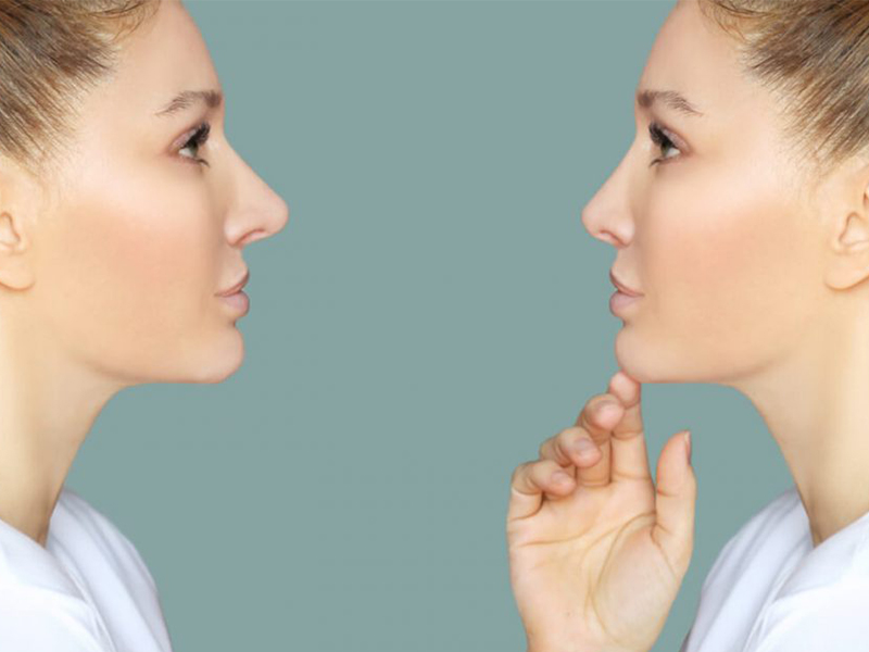 قبل از جراحی بینی چه اقداماتی باید انجام داد؟