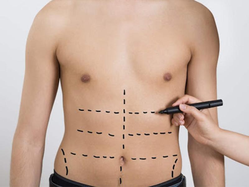 لیپوساکشن؛ بهترین روش برای لاغری موضعی