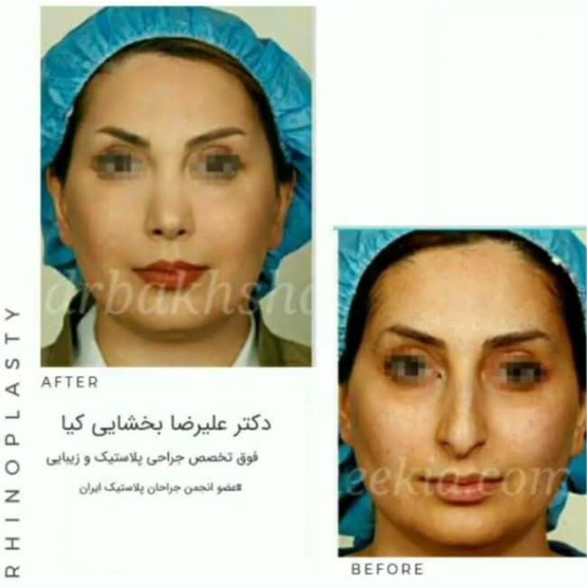 نمونه کار جراحی بینی دکتر بخشایی کیا