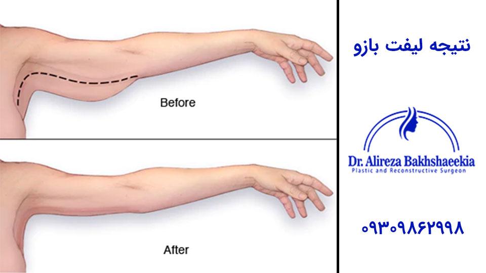 جراحی لیفت بازو