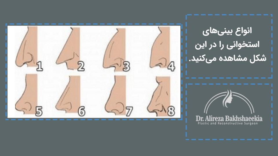 انواع بینی استخوانی