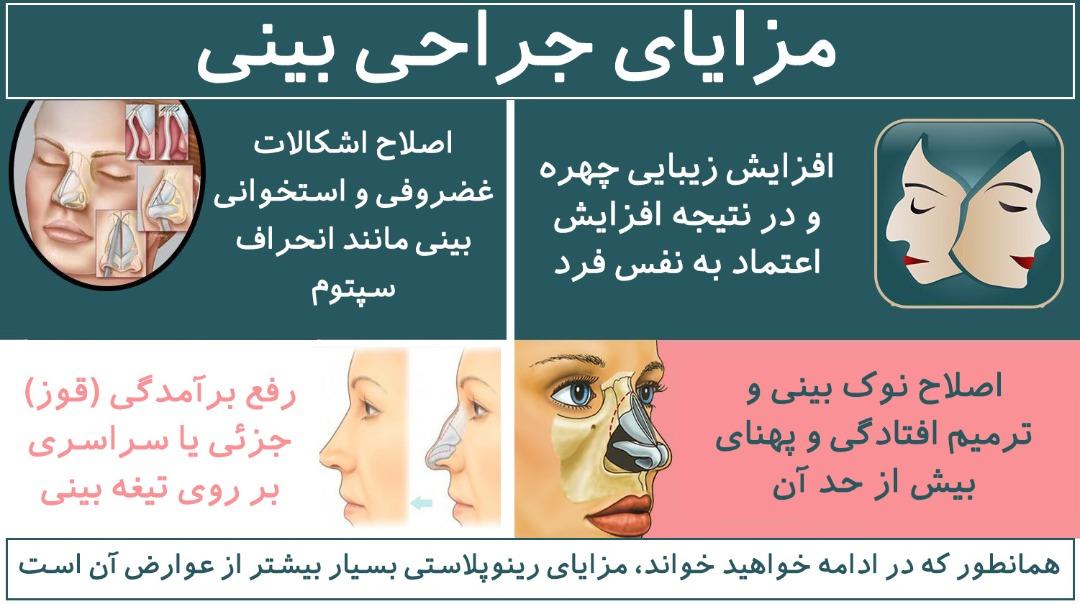 مزایای جراحی بینی