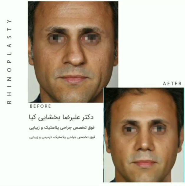 نمونه کار جراحی بینی مردانه