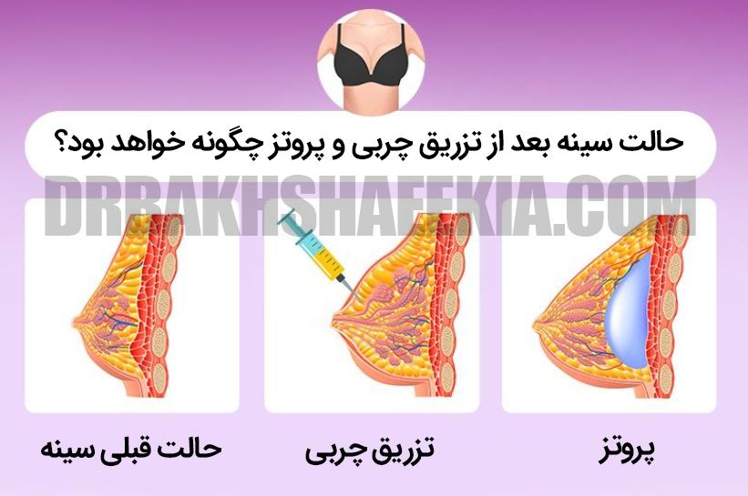 تزریق چربی به سینه یا پروتز