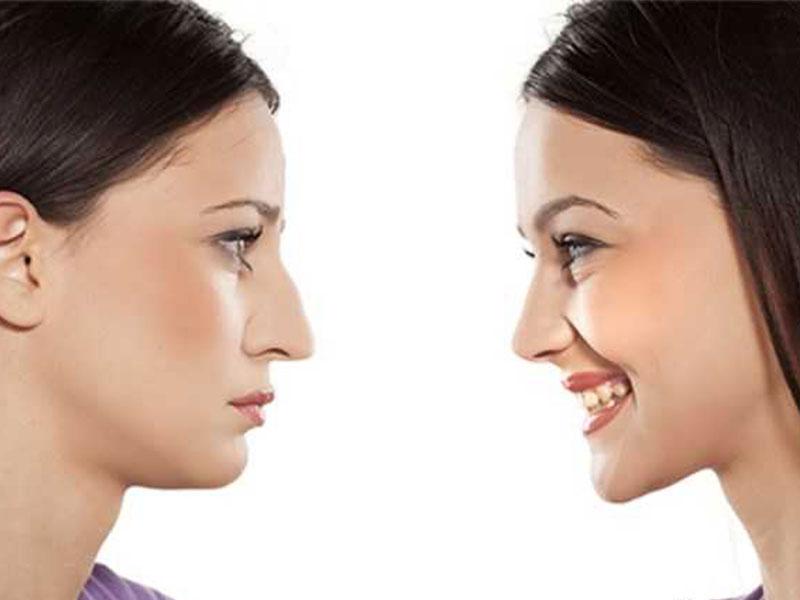 تغییرات چهره بعد از جراحی بینی